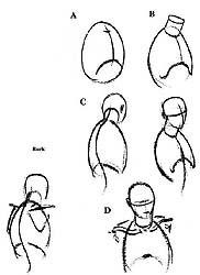 Illustration 4.