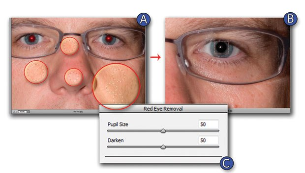 [Figure 1.79] View of red eye and multiple placements of Retouch/Nodes.